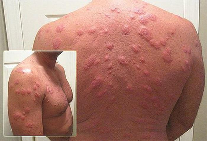 Аллергия на клеща пылевого