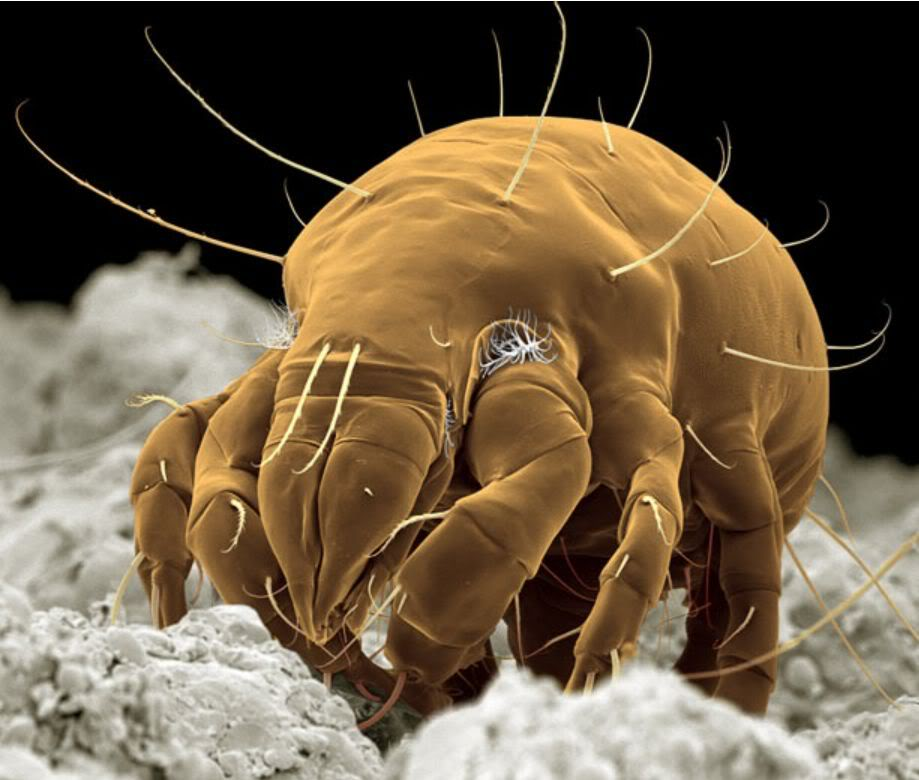 Microscopic bugs on human body
